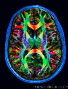 Nerve fibres of the brain, DTI scan